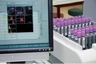 L'analyse antidopage : au cours d'un premier stade d'analyses rapides, on trie les échantillons, dont on compare les profi ls avec un profi l standard.