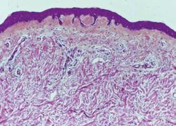 Image au microscope d'une coupe de peau.